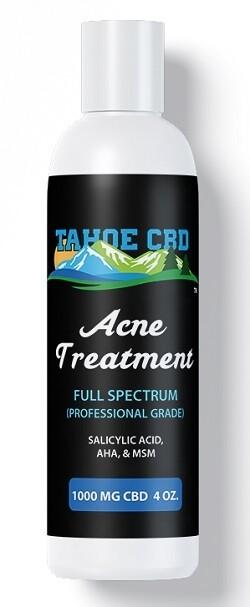 Tahoe CBD Acne Treatment~1000mg CBD 8 oz.