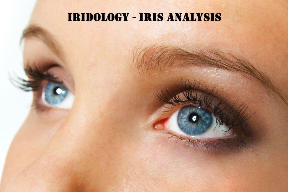 Iridology Basics 101 - Follow up