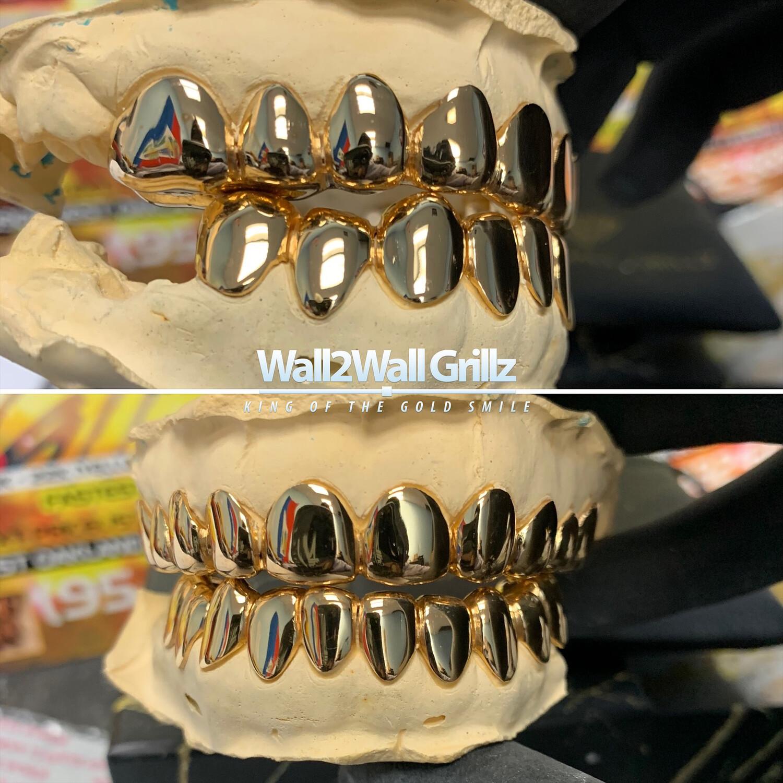 Non-Precious Gold Alloy (NPG) ($30 Per Tooth)
