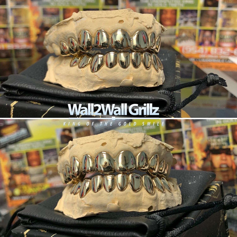 14 Karat Gold Grillz ($95 Per Tooth)