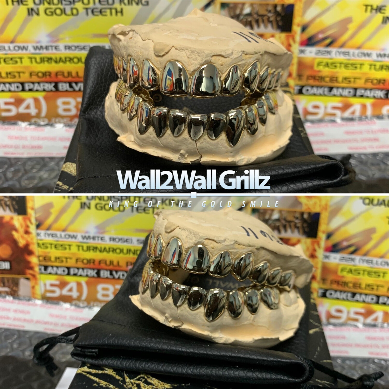 Alternative Gold Alloy (AGA) ($35 Per Tooth)