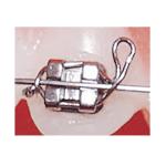 Stainless Steel Ligature Ties (Koby Ties)
