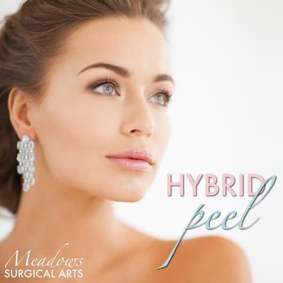 Hybrid Peel