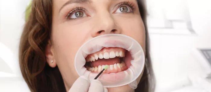 Ретрактор губной OptraGate