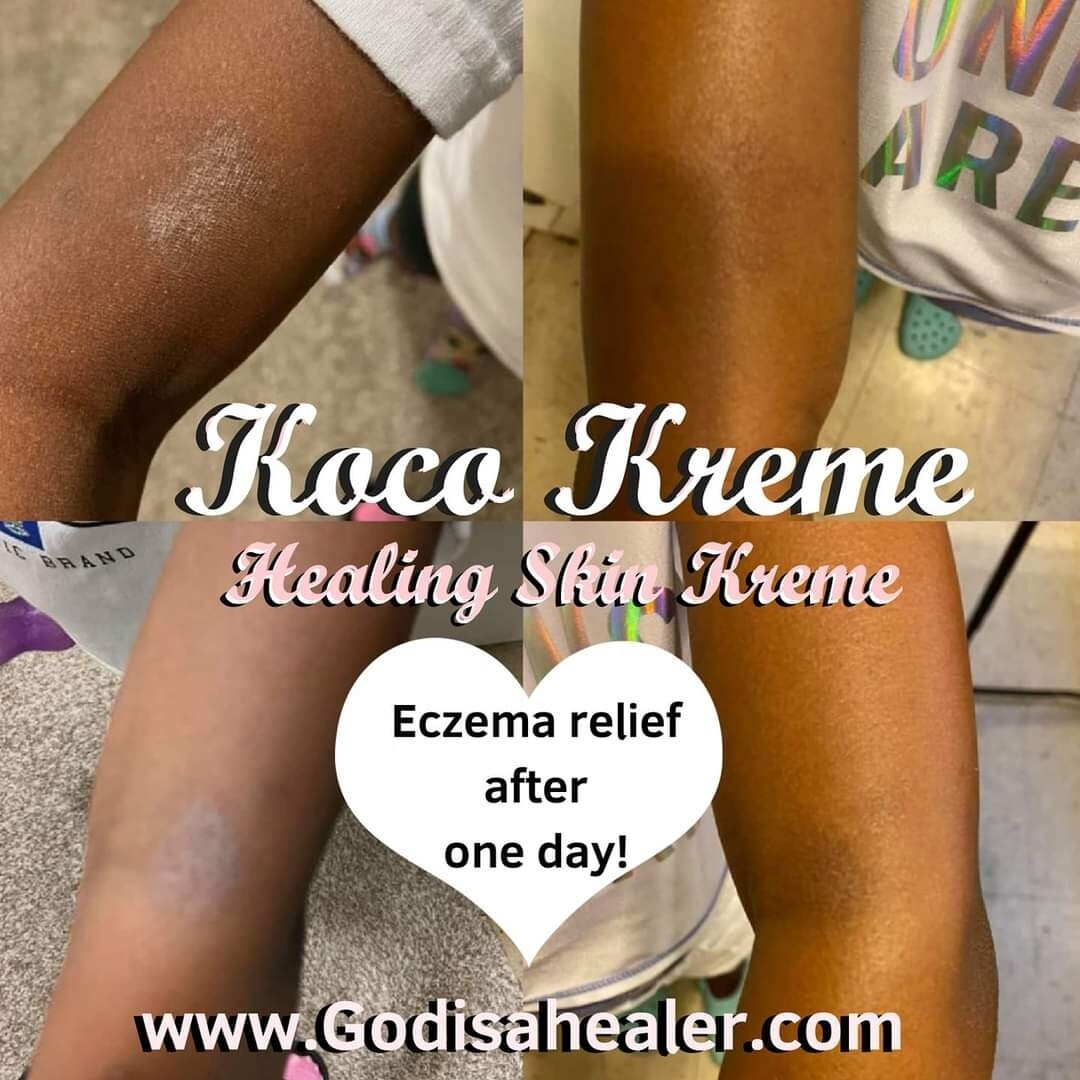 Koco Kreme Healing CBD Lotion Jar Organic shea butter, goat's milk, and cocoa butter cream to heal any skin condition! This formula has been proven to cure eczema in days!