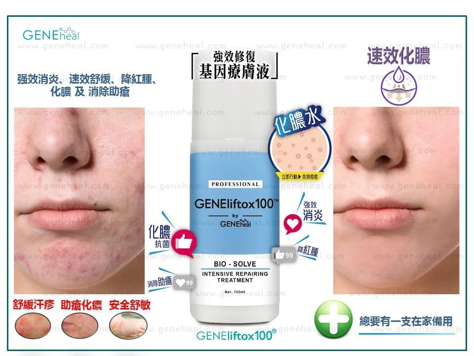 <軒仔推介> GENEheal  Bio Intensive Repairing Treatment 「強效修復基因療膚液」