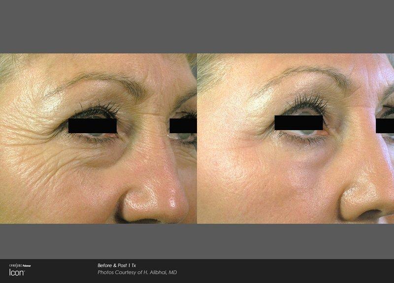 Laser Fine Line and Wrinkle Removal