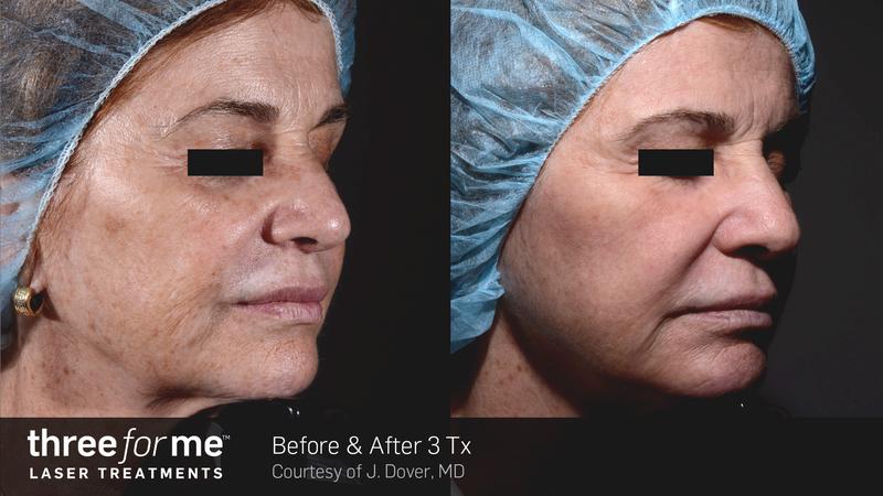 Laser Skin Resurfacing (Three For Me)