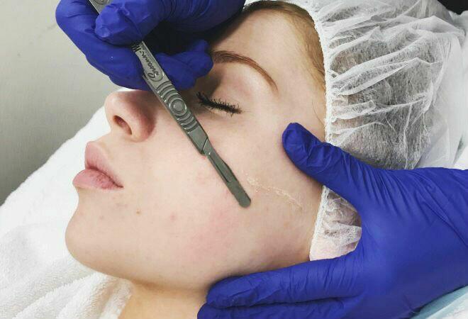 Dermaplaning Facial Treatment