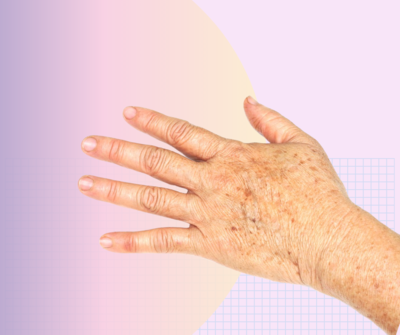 Skin Classic Treatment For Hands