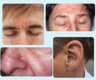 Seborrheic Dermatitis Symptoms Relief Facial