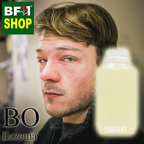Blended Essential Oil (BO) - Eczema Essential Oil -500ml