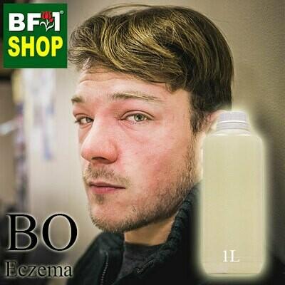 Blended Essential Oil (BO) - Eczema Essential Oil -1L