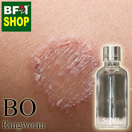 Blended Essential Oil (BO) - Ringworm Essential Oil - 50ml