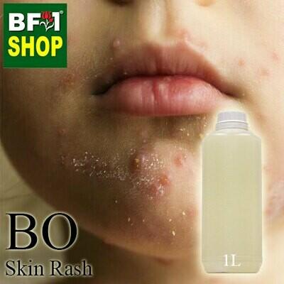 Blended Essential Oil (BO) - Skin Rash Essential Oil - 1L
