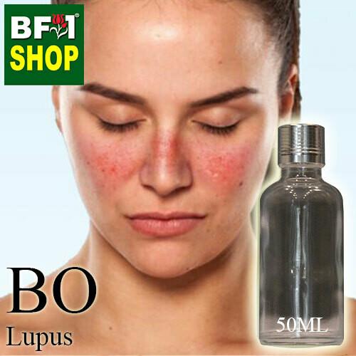 Blended Essential Oil (BO) - Lupus Essential Oil - 50ml
