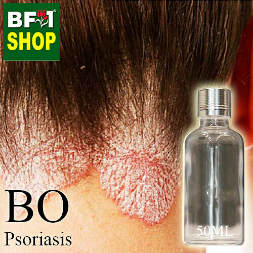 Blended Essential Oil (BO) - Psoriasis Essential Oil - 50ml