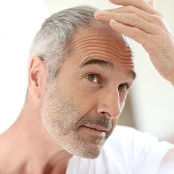 Meso Hair Loss Control