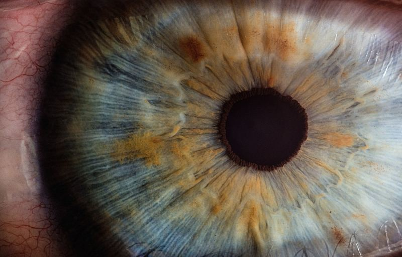 The Human Eye - Diseases & Disorders - CPD