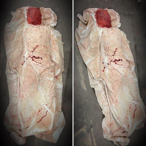 Morgue Body