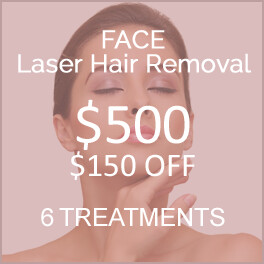 Face Laser Hair Removal - $150 OFF
