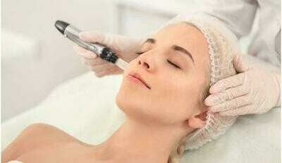 One Microneedling Treatment