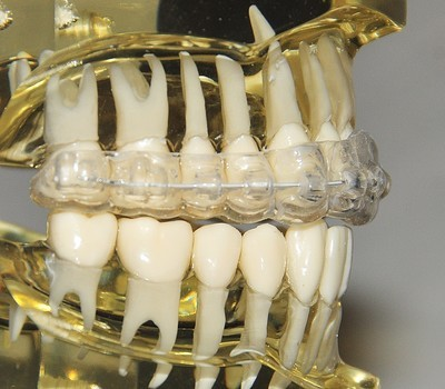 First Stage of Treatment: Hybrid Clear Aligner System