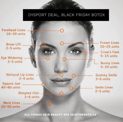 50 units of Botox or 75 units Dysport