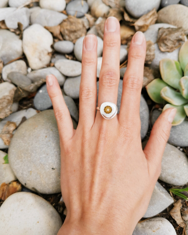 Miniature Sea Urchin Ring