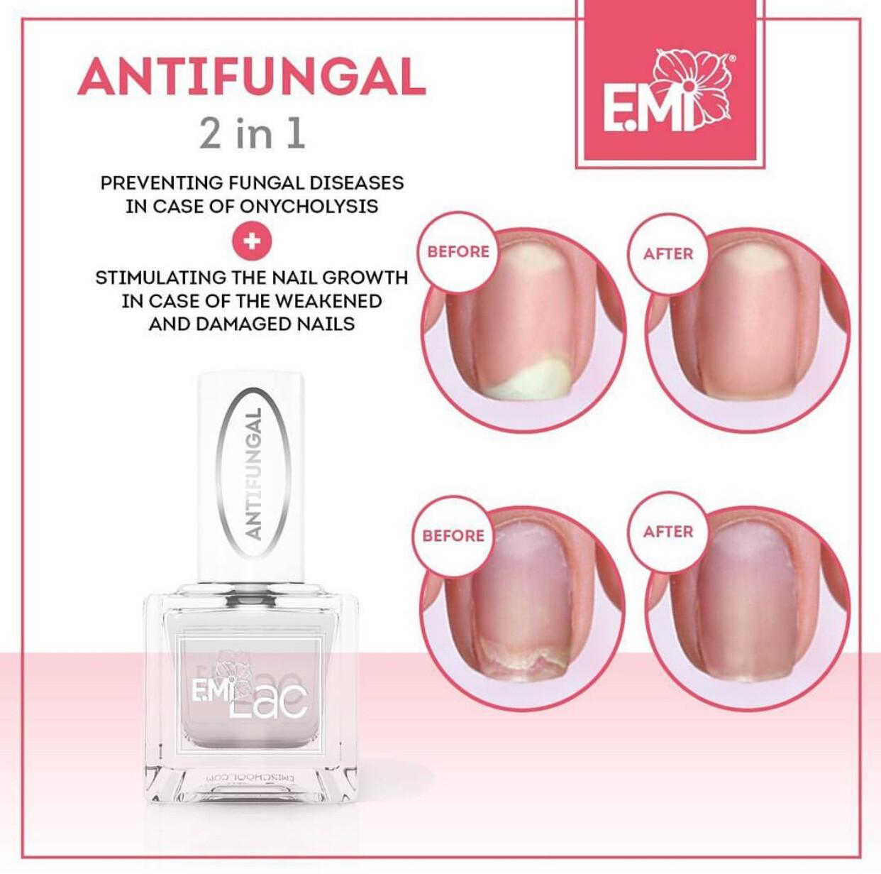 Antifungal – nail growth stimulator, 9 ml.