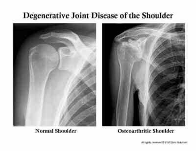 Degenerative Joint Disease of the Shoulder