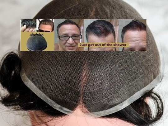 Ion Medical Mesh 2000 NI Hair replacement systems