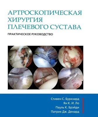Артроскопическая хирургия плечевого сустава