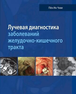 Лучевая диагностика заболеваний желудочно-кишечного тракта