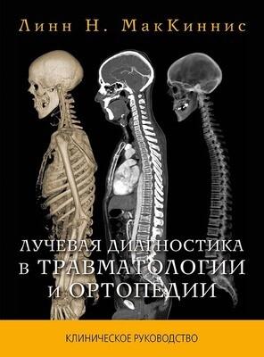 Лучевая диагностика в травматологии и ортопедии