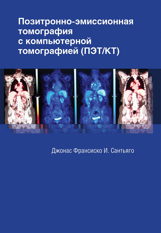 Позитронно-эмиссионная томография с компьютерной томографией (ПЭТ/КТ)