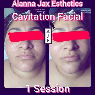 4 Cavitation Facials w/Skin Tightening & the WORKS