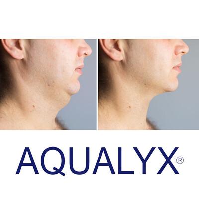 Aqualyx Course