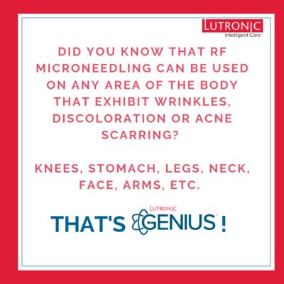 Genius RF Mirco-Needling Treatment