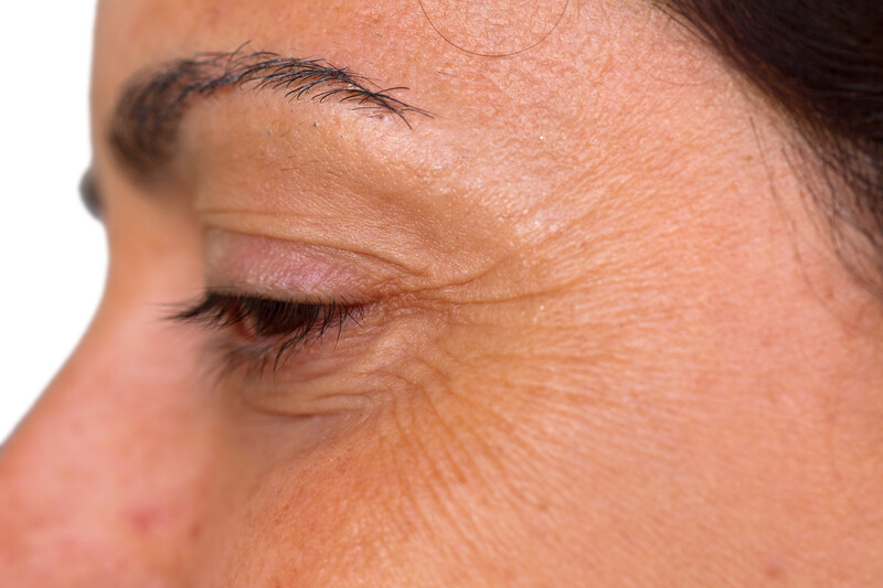 Crow's feet removal (Botox)
