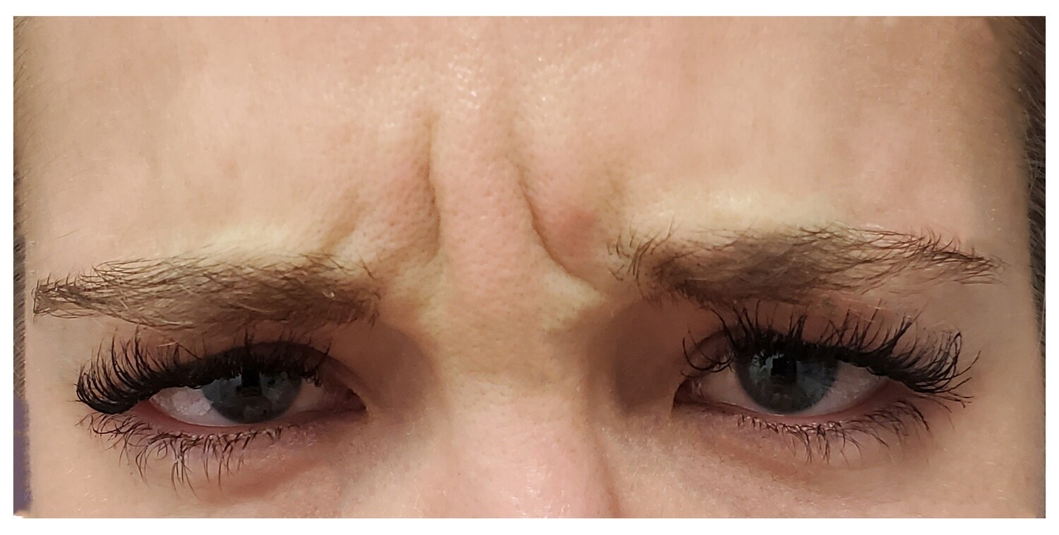 Frown Line ('Elevens') smoothing (Botox)
