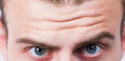'Thinking Lines' forehead wrinkle removal (botox)