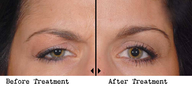 Non invasive Browlift (Botox)