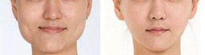 Jaw botox