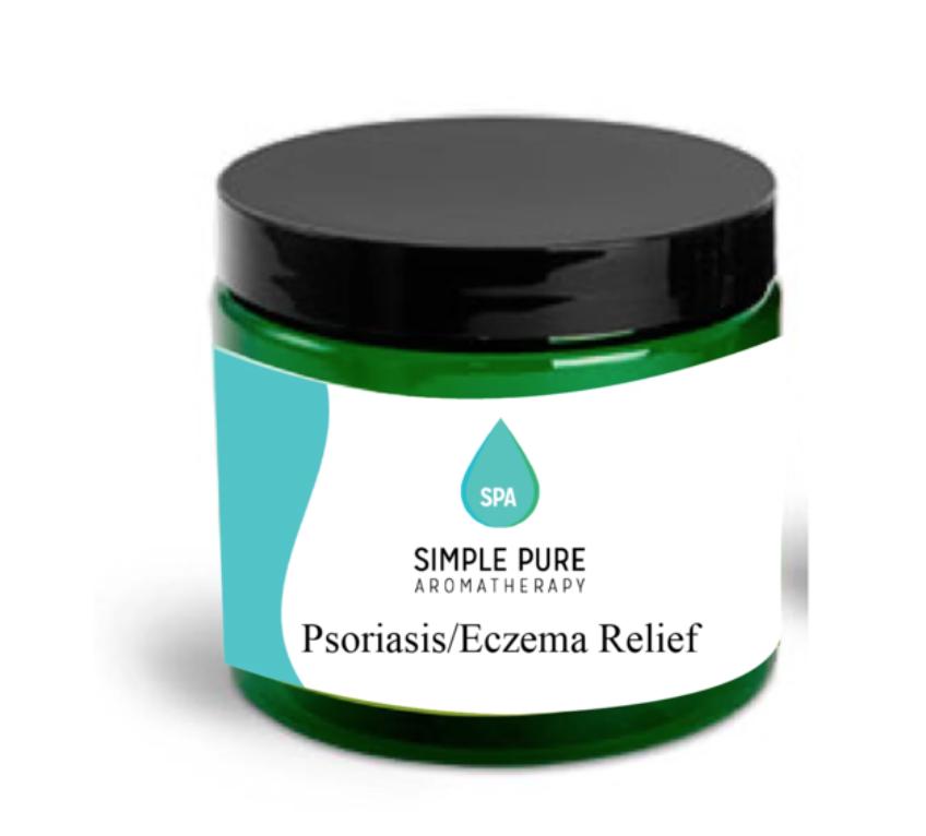 CBD Psoriasis/ Eczema Cream