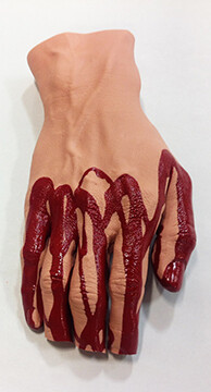 Hand with Severed Fingers by Simulaids®