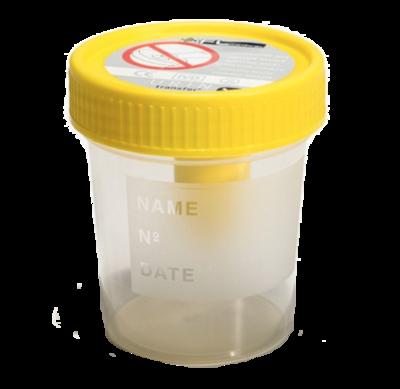 Pot urines 120ml