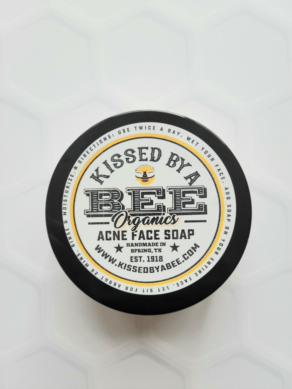 Acne Face Soap w/ Allantoin & Sea Moss