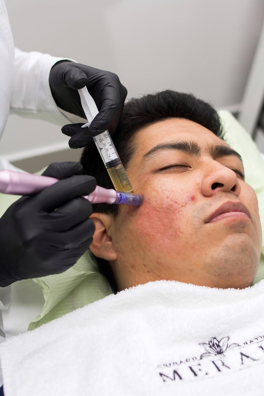 Microneedling para secuelas de acné y/o estrías