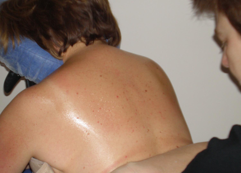 Seated Therapeutic Massage
